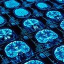 02062017_brain_scans_iStock