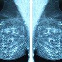 03132017_mammogram_iStock