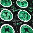 03162017_brain_scans_iStock