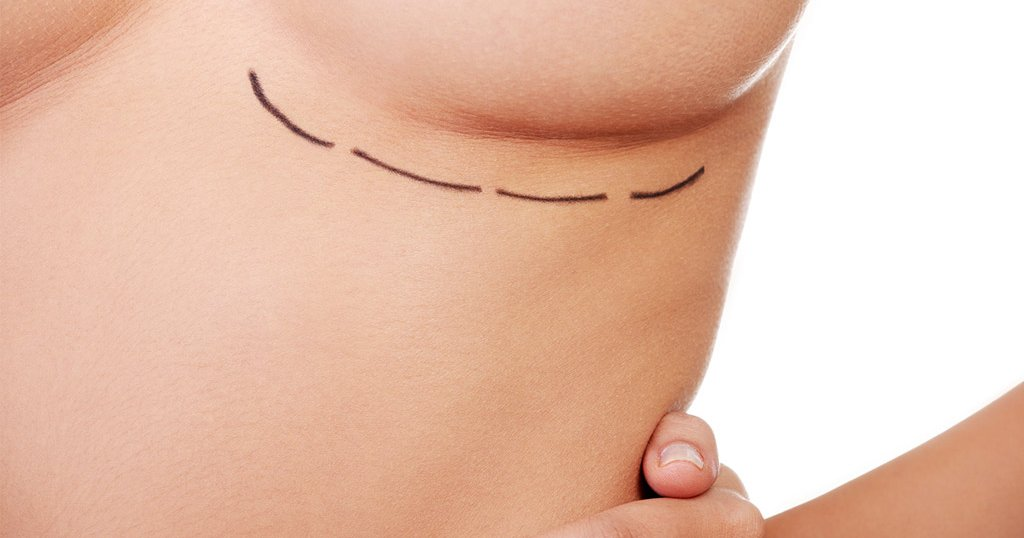 American society of breast surgeon