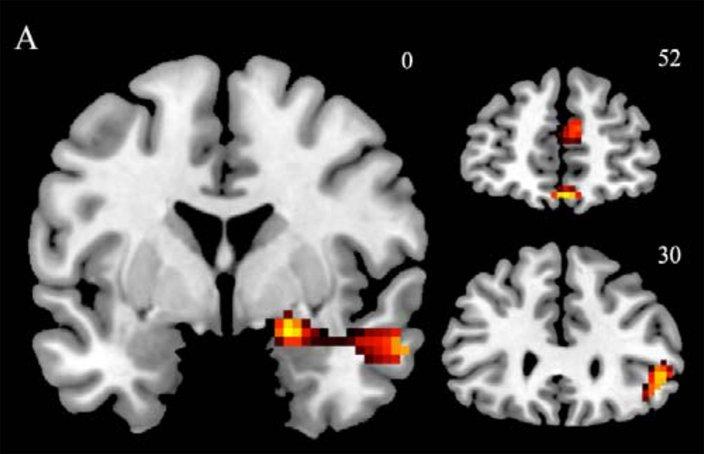04152015_science_brain_scan