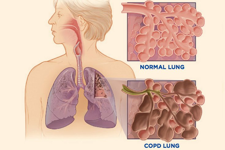 04162018_COPD_CDC