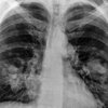 05032015_lung_cancer_wiki