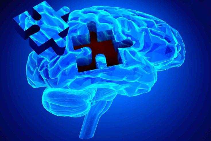 05222015_alzheimers_brain_iStock