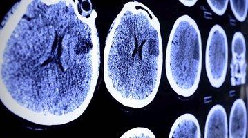 10162015_stroke_brain_generic_iStock