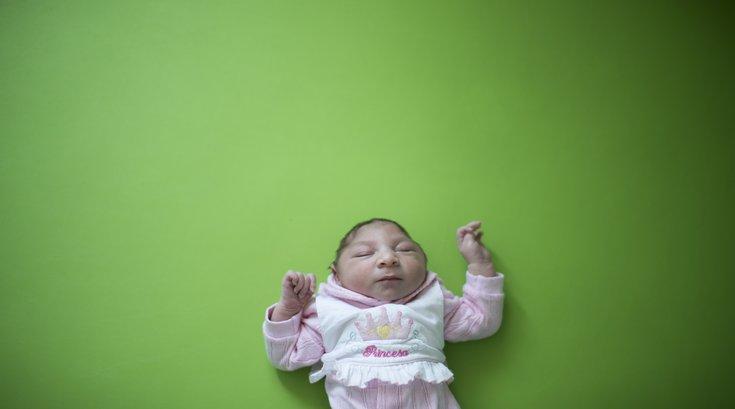 Zika virus baby