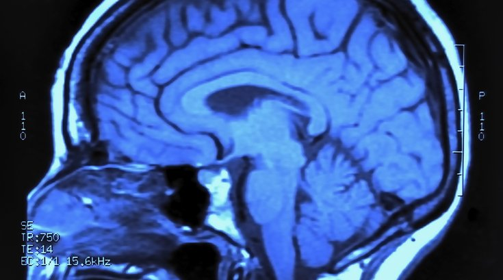 concussion brain 1
