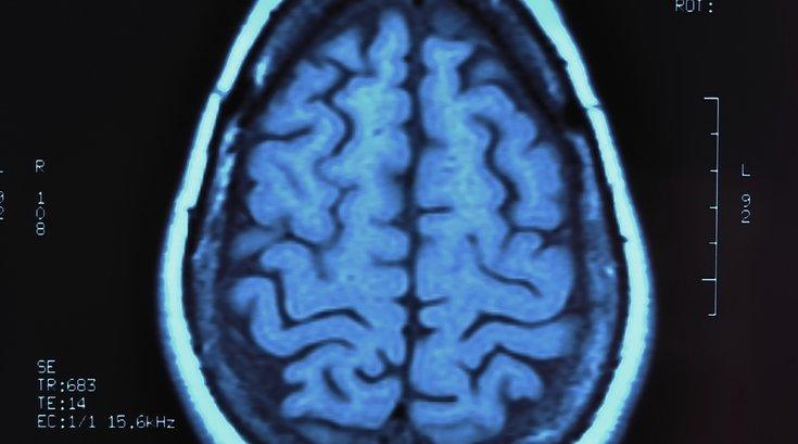 concussion brain 2