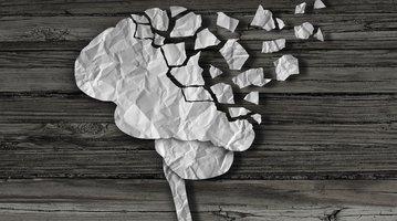 concussion brain 3