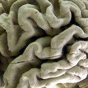 Alzheimers Lifestyle