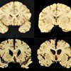 Science Says Football Brain Disease