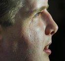 APTOPIX Face Transplant