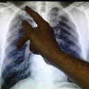 BRITAIN_Tuberculosis