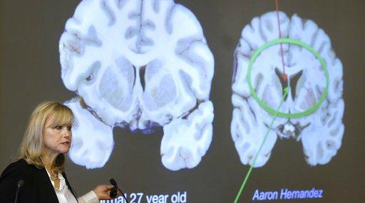 Aaron Hernandez Brain