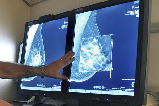 Breast Cancer Mammograms